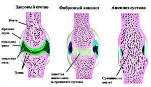 анкилоз сустава