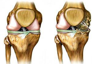 artroz kolena