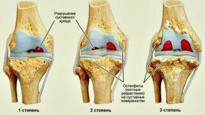 stepeni-artroza-kolennogo-sustava