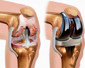 операция колено