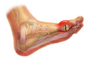Подагра - заболевание суставов. Почему появляется и как лечить