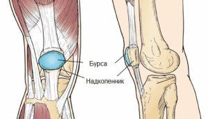 Бурсит колена: лечение народными средствами