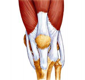 Лигаментоз связок коленного сустава