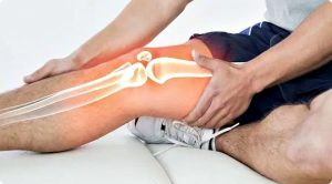 миозит колена