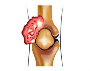 Саркома коленного сустава