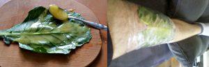 капустный-лист-с-медом-при-периартрите