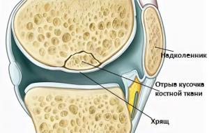 отрыв костной ткани
