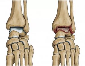 artroz golenostopnogo sustava