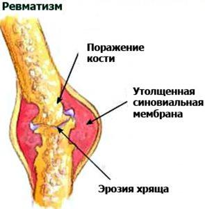 revmatizm