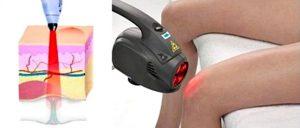 как лазер действует на суставы