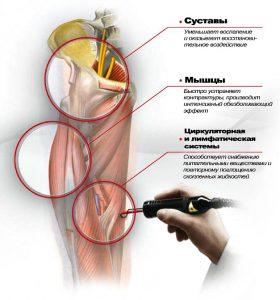 Лазер коленного сустава процедура thumbnail