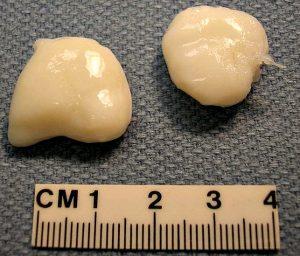 суставная мышь размеры