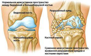 костные наросты на колене