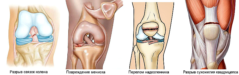 travmy kolena