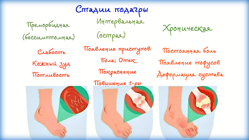 stadii podagry